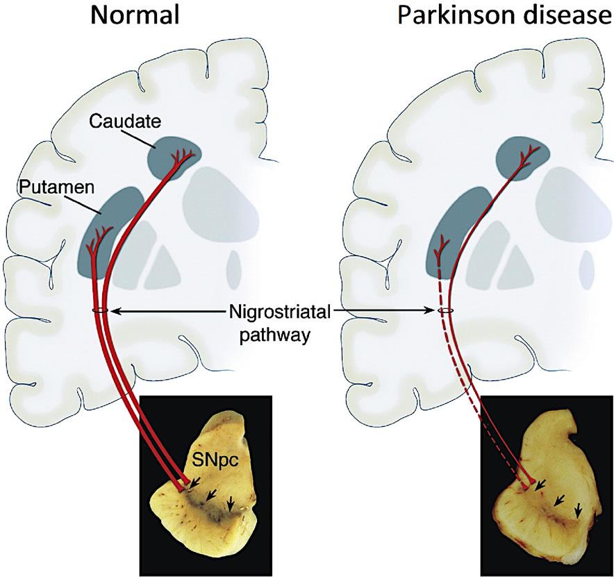 Parkinson: The Science Of Parkinson's
