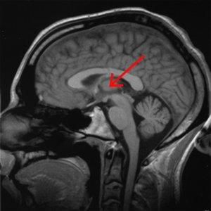 Brain_chrischan_thalamus