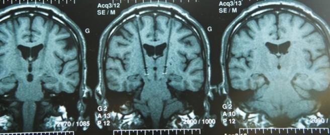 Deep-Brain-Stimulation-60pghfsukanm4j4bljb8mbq9hyafm3pj0e6t4iuyndm