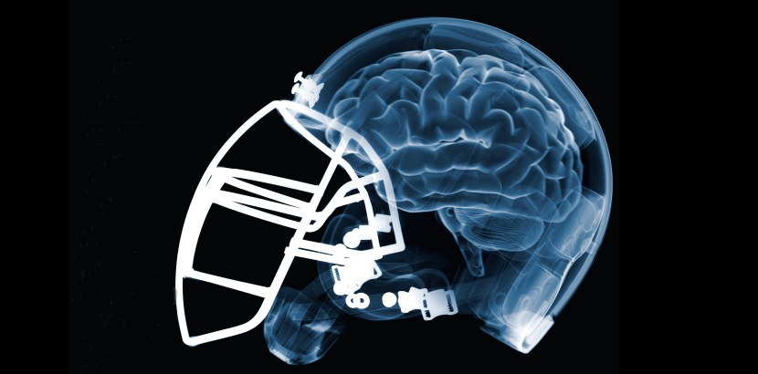 football-brain-ocotber-2009.jpg