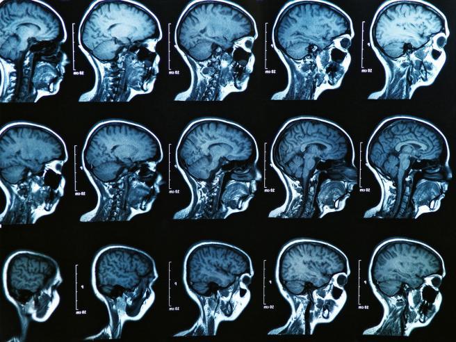 TOP-L-Concussion Front Page