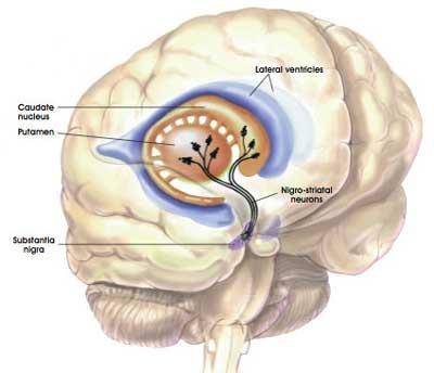 brain-nigrostriatal-parkinsons