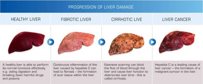 Progress-of-Liver-Damage