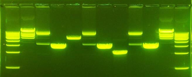 agarose-gel-electrophoresis-dna