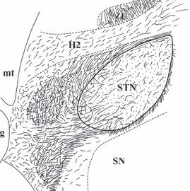 Figure-3-Schematic-drawings-showing-the-5-HT-innervation-of-the-human-subthalamic