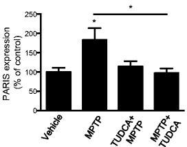 UDCA 2 0 = TUDCA? | The Science of Parkinson's